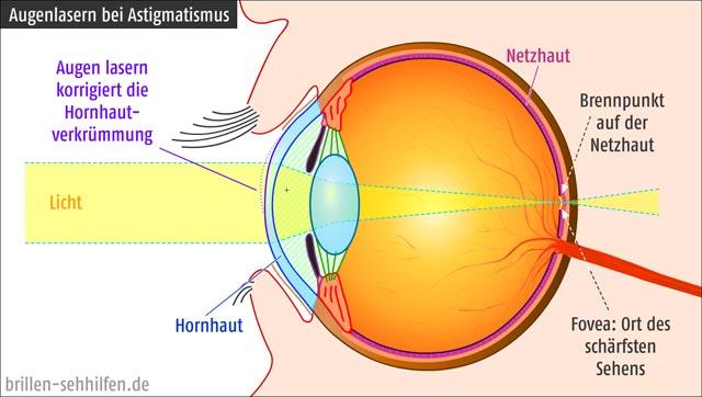 Augenlasern bei Astigmatismus (Hornhautverkrümmung)