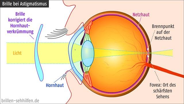 Brille bei Astigmatismus (Hornhautverkrümmung)