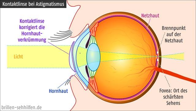 Kontaktlinse gegen Astigmatismus (Hornhautverkrümmung)