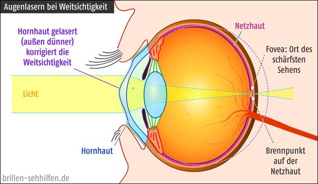 Augenlasern gegen Weitsichtigkeit