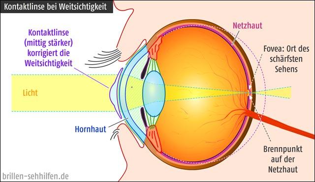 Kontaktlinse gegen Weitsichtigkeit