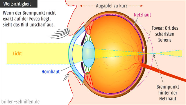 Weitsichtigkeit des Auges