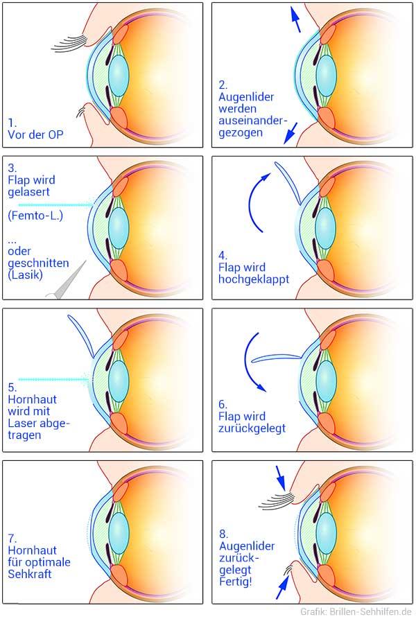 Augenoperation - Wie funktioniert Augenlasern? (Infografik)