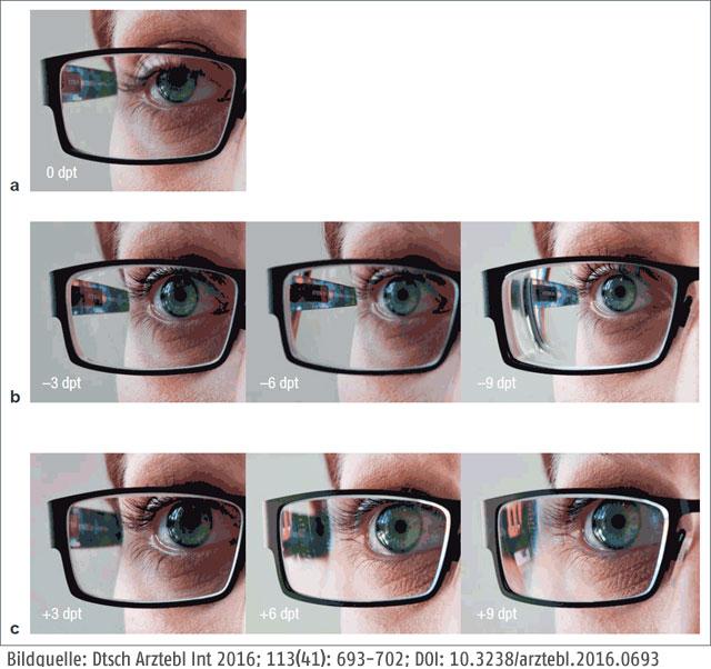 Brille - Dioptrien-Unterschied, von außen gesehen