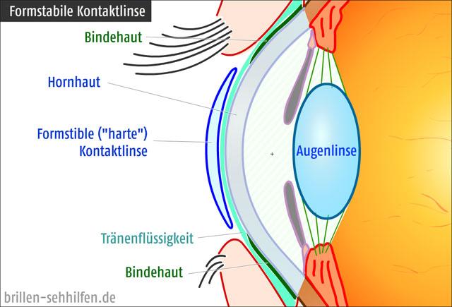 typische Mißfeldt-Grafik: formstabile Kontaktlinse